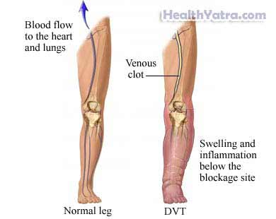 Deep Vein Thrombosis Definition, Causes, Symptoms, Complications and ...