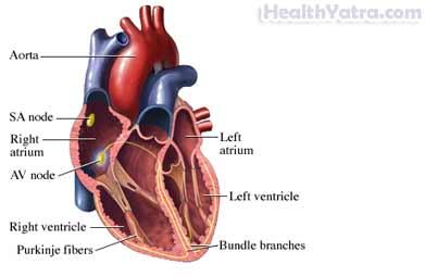 Heart Murmur Definition, Causes, Symptoms, Complications ...