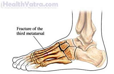 The Metatarsal Bones Of The Foot Are Commonly Afflicted By Stress Fractures.  There Are Five Metatarsal Bones In Each Foot. They Are Located In The Area  ...