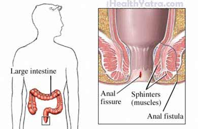 Sypmtoms of anal fissure