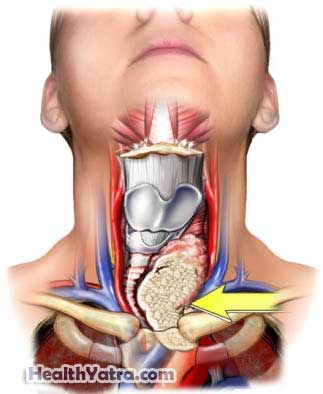 Thyroid Cancer Definition Causes Symptoms Complications And