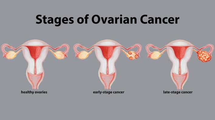 Ovarian Cancer Surgery In India Cost Treatment Surgery Top Hospital Best Doctors In India 2020